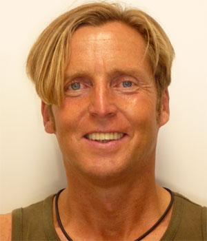 Dieter Windheuser
